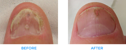 Fungal-Nail-Infections