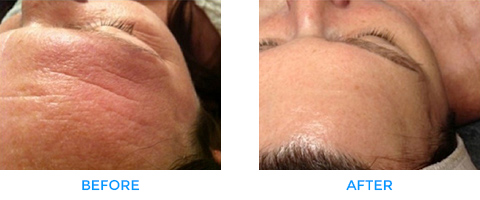 Skin-Rejuvenation